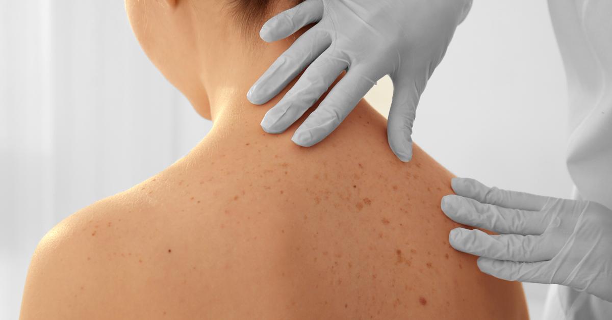 prevenzione dermatologica ministero salute